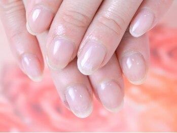 シャンネイルケアサロン(Shan Nail caresalon)の写真/地爪が薄くて、割れやすい方!二枚爪や深爪でお悩みの方!足の巻き爪など、お爪の悩みを改善いたします。