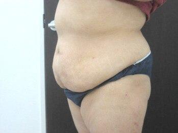 ナチュラルデトックス ナイビ 内美 NAIBIの写真/静岡県初導入!筋肉から働きかけてブヨブヨの脂肪を分解&燃焼![TRIPLE ATTACKトリプルアタック¥9000→¥8500]