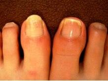 専用の器具で爪がピカピカに♪血行も良くなり健康的な爪に!
