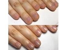 美爪育成理論に基づいた施術で最短で美爪へと導きます。