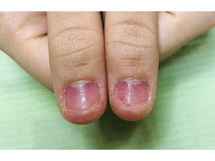 ポミグラニットフィンガーズ(Pomegranate Fingers)の写真