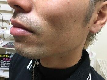 プル プリ(Puru Puri)/ひげのコンプレックス解消!