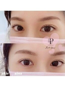 ネイルサロン アイナ 北千住東口店(Aina)/美眉スタイリング+アイブロウ