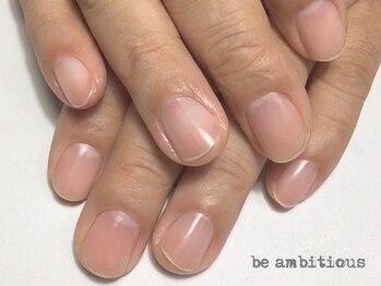 ネイルサロンアンドスクール ビーアンビシャス(be ambitious)の写真/乾燥・さかむけ・爪が薄い・割れやすい‥等のお悩みはお任せ☆巻爪、深爪にも対応!丁寧ケアで美爪を育成♪