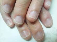 before:形など爪のコンプレックスは相談を。自慢のこだわりケア!