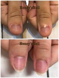 深爪矯正 美爪育成