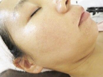 ビューティーメイクさくらの写真/グリーンピールでターンオーバー正常化を促し、毛穴汚れやくすみを除去◎美しく透き通る肌へ導きます!