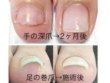 爪のコンプレックやケアや深爪育成メニューで清潔感ある指先に!
