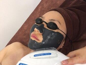 サロン ド ユウ(Salon de You)/ニキビ撃退!ブラックピーリング