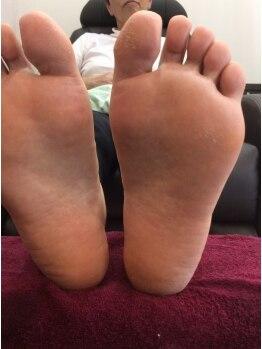 シャンネイルケアサロン(Shan Nail caresalon)の写真/足裏のお悩みも解消!《フットスペシャル保湿トリートメント》メニュー詳細についてはブログに掲載中♪