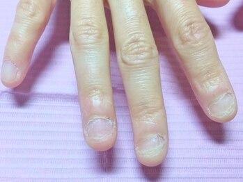 ヘアーアンドネイル オルオル(Hair&Nail olu'olu)の写真/【リフィル★ラメグラ・ワンカラー¥7480】自爪に優しいオフなしのネイルでお洒落を楽しみながら『育爪』♪
