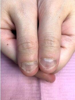 ポミグラニットフィンガーズ(Pomegranate Fingers)の写真/【大阪深爪矯正/無料カウンセリング】私の爪でも大丈夫??ネイルサロンへ行ったことがない人もお気軽に♪