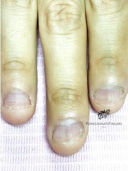 ポミグラニットフィンガーズ(Pomegranate Fingers)の写真/【深爪矯正/大阪深爪専門サロン】たった90分で深爪さんが人に見せたい自信の持てる美爪に変わる☆