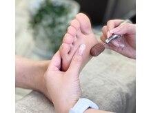 ナチュラルネイル(Natural Nail)の雰囲気(ドイツ式本格フットケアでツルツルの足裏に♪巻いた爪の補正も。)