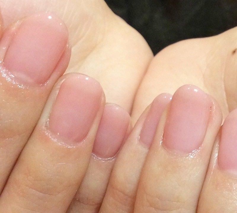手荒れ、指が短い、手のむくみ…手のお悩み解決法のサムネイル画像